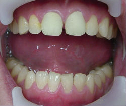 Kelly - Poor Fitting Contoured Anterior Crowns