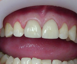 Kelly - Newly Fitted Anterior Porcelain Crowns